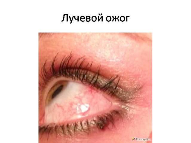 Ожог глаз кварцевой лампой: симптомы и лечение